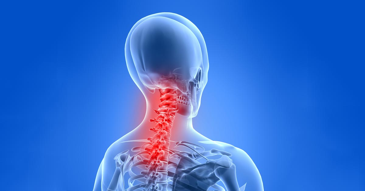Boardman, OH car accident and neck pain treatment