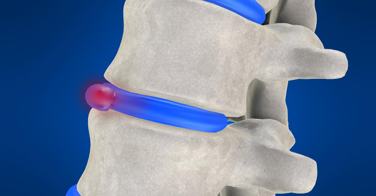 Boardman, OH non-surgical disc herniation treatment